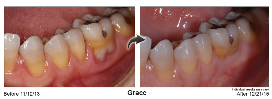 fix gum recession Palm Desert CA