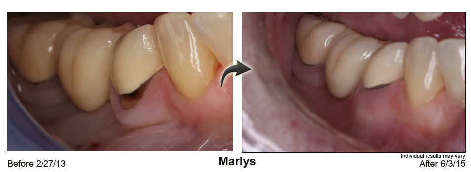 fix receding gums Palm Desert CA